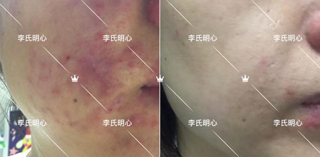 李氏明心祛痘膏-粉刺和囊肿痘痘治疗案例