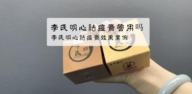 李氏明心祛痘膏管用吗?有谁用过李氏明心祛痘的?
