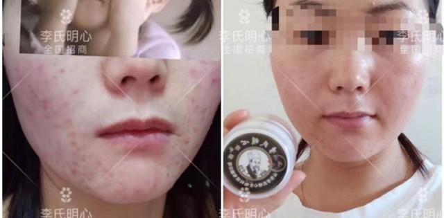 用祛痘膏期间能化妆吗?李氏明心告诉为什么长痘不能化妆!