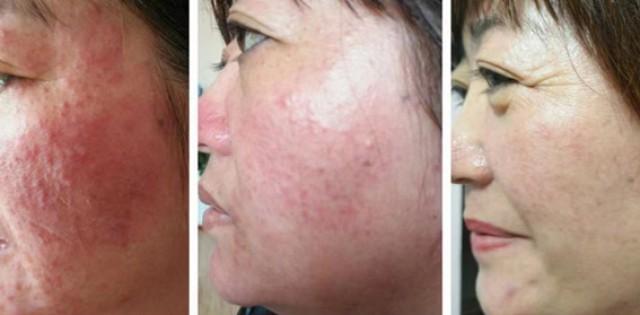 激素脸怎么治疗修复好得快?医生推荐激素脸治疗方法!