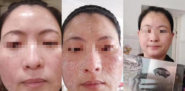 春季皮肤过敏怎么办?红肿痒可以用李氏明心御颜修护套吗?