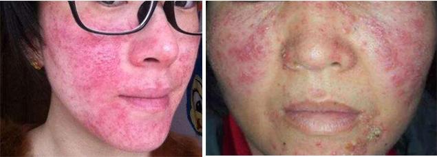 激素脸形成的原因,修复激素脸过程中出现干痒怎么办-李氏明心