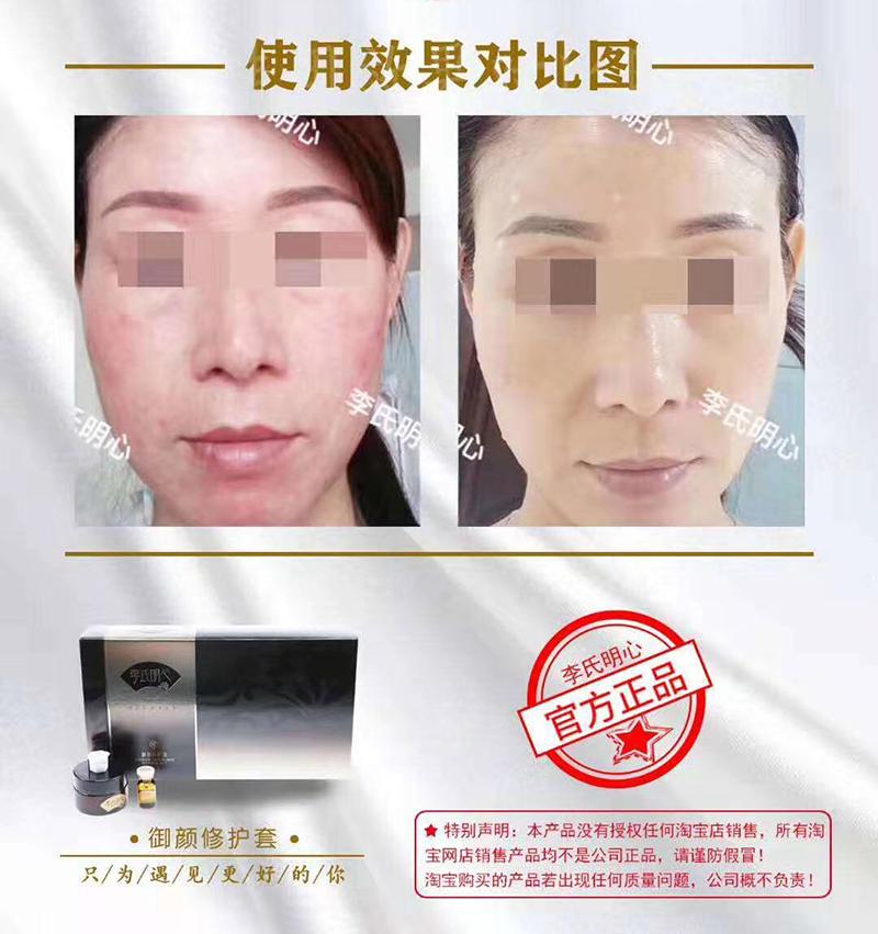 皮肤屏障受损怎么修复?皮肤屏障修复需要多久?-李氏明心