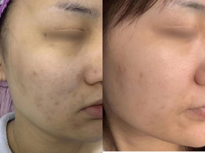 怎么收缩毛孔?毛孔粗大能反应出皮肤哪些问题-李氏明心