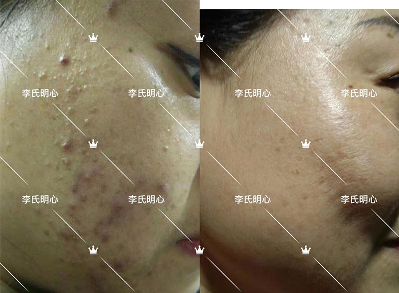 李氏明心祛痘膏-粉刺和囊肿痘痘治疗案例-李氏明心