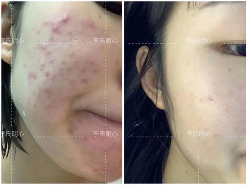 使用李氏明心祛痘膏效果,一个月祛痘成功案例-李氏明心