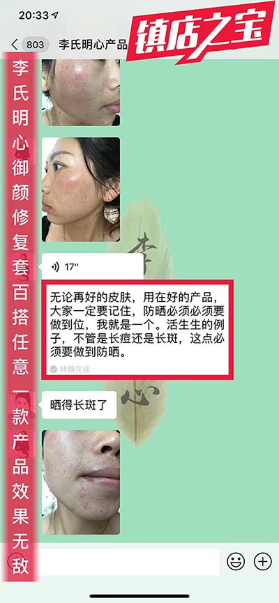 李氏明心祛斑/祛红血丝案例-李氏明心
