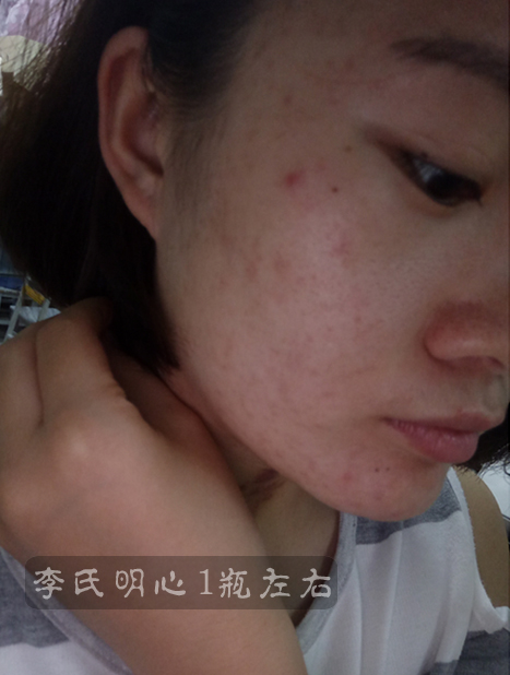 李氏明心祛痘膏改善油痘肌案例,油性痘痘皮肤怎么改善-李氏明心
