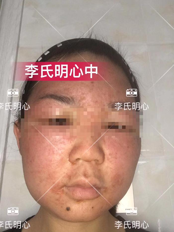 李氏明心御颜套修复激素脸全过程记录-李氏明心