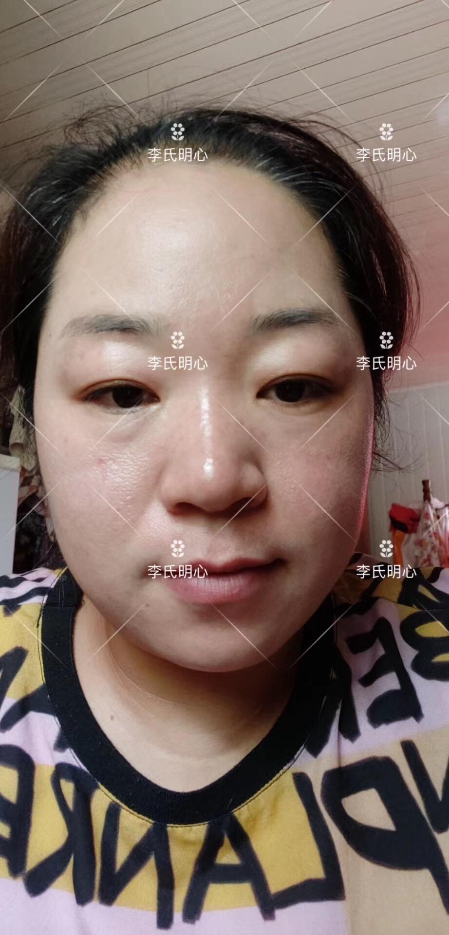 祛斑产品推荐李氏明心祛斑霜!效果案例-李氏明心